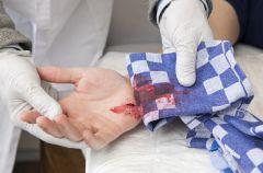 Jak zatamowa� krwawienie z rany?