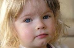Choroby zaka�ne wieku dzieci�cego