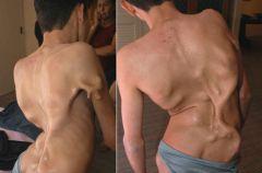 Fibrodysplazja - post�puj�ce kostniej�ce zapalenie mi�ni