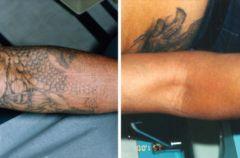 Jak zlikwidowa� tatua�?