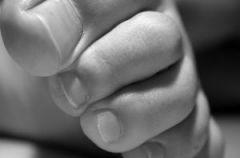 Odciski i modzele - zapobieganie i usuwanie