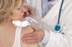 Znamiona i pieprzyki po opalaniu - diagnostyka i usuwanie