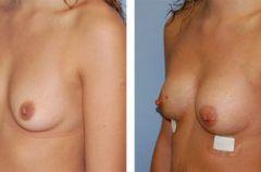 Pe�niejszy biust bez operacji i implant�w