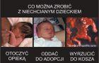 Popatrz na aborcj�