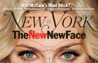 The New Face. Gwiazdy pod lup� chirurga plastycznego