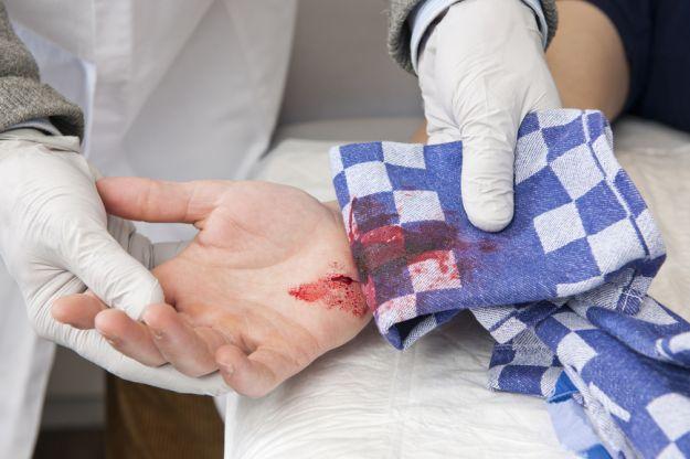 Jak zatamować krwawienie z rany?