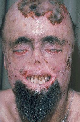 7 chorób dramatycznie zmieniających wygląd człowieka