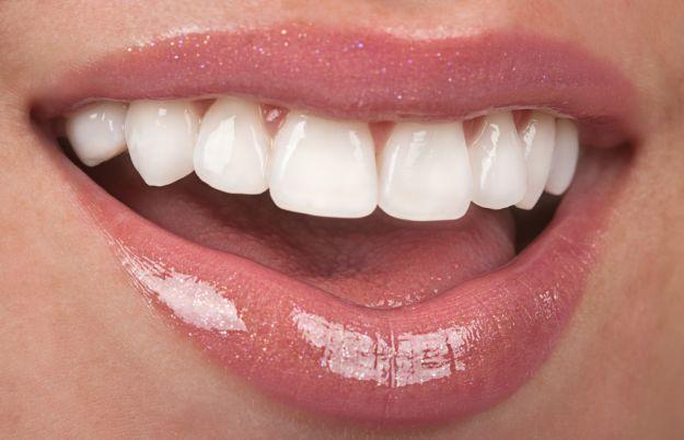 Piękne zęby - strzeż się perfekcji