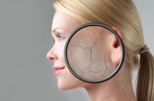 5 niepokojących problemów skórnych
