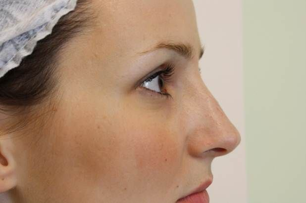 Korekta nosa bez operacji