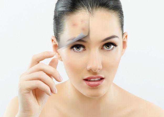 Jak usunąć blizny po trądziku?
