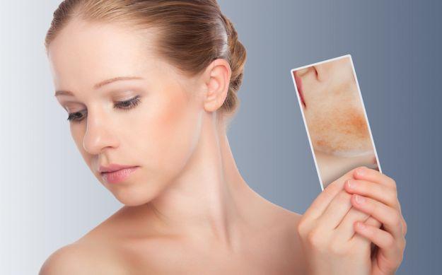 Domowe sposoby na stany zapalne skóry