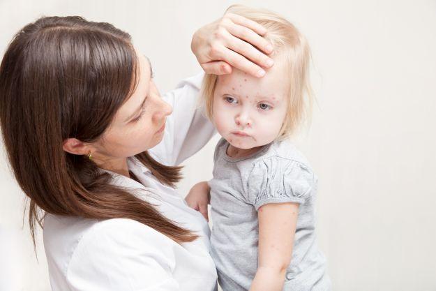 Objawy odry u dzieci