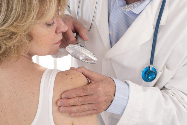 Znamiona i piperzyki po opalaniu - diagnostyka i usuwanie