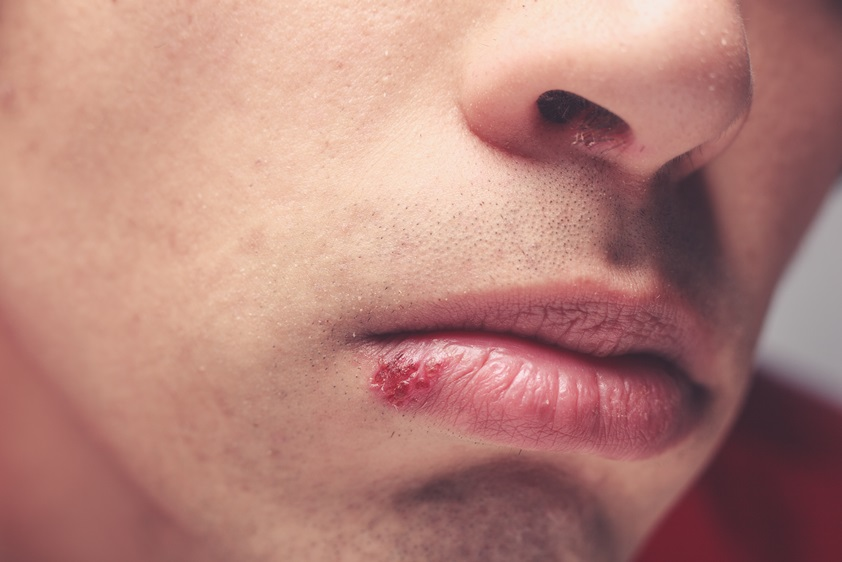 Cold sores | BabyCenter